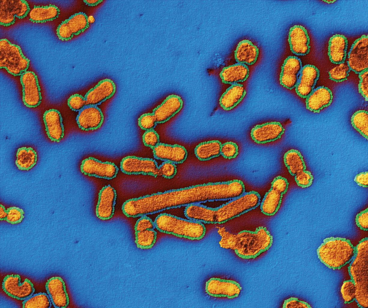 Influenza-70000x-8bit